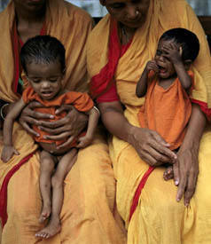 Two children suffering from malnutrition in Dhaka , Bangladesh .