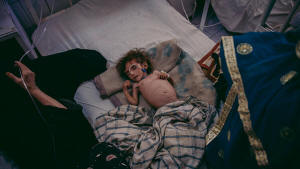 Picture of severely malnourished Afgan child lying on a bed. Photo: Mujahid Safodien/IRIN