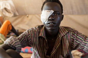 Lat Padang, a soldier with the opposition army in South Sudan, with a patch over his eye, at a hospital in Bentiu after being wounded in battle.  Photo:  Lynsey Addario/ New York Times