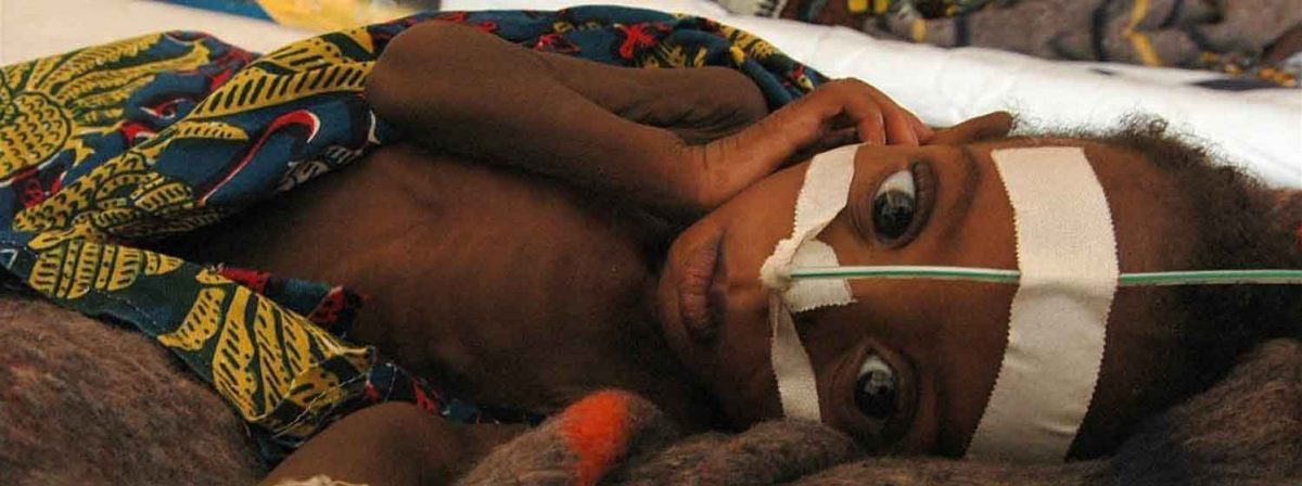 Niger, Tahoua. A skeletal child receives emergency food through a tube at an emergency feeding center in Niger. Malnutrition is a serious problem each year in Niger, the drought and famine brought it to catastrophic proportions. [Date picture taken: 2005/08/08] © Edward Parsons/IRIN