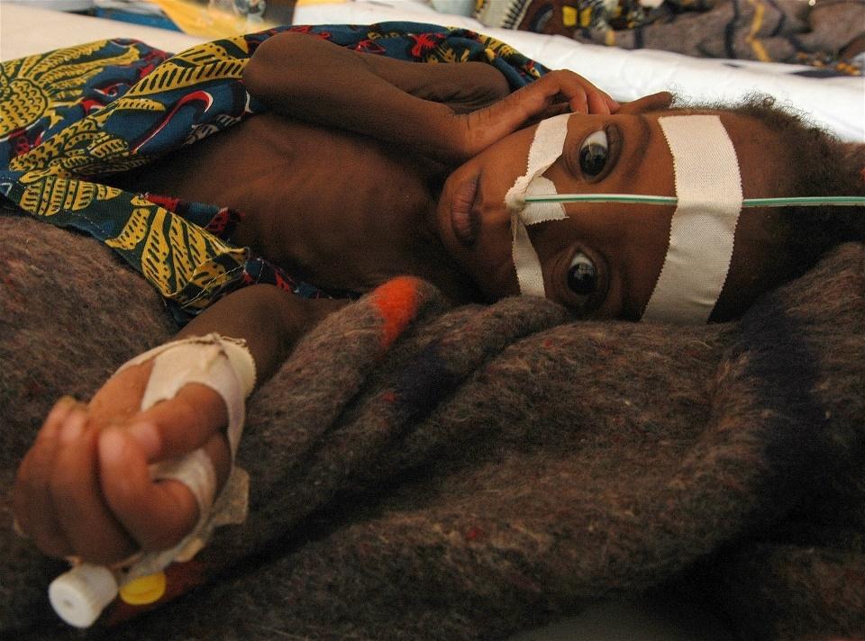 niger_child_feeding_center