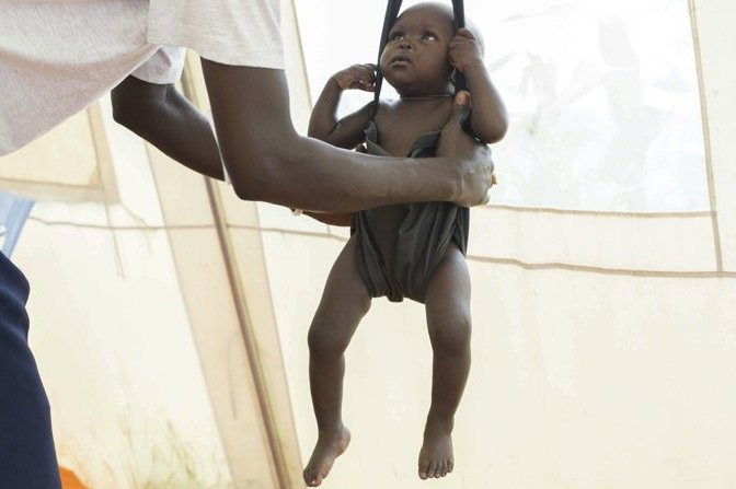 Child being weighed by health care worker to see if the child may be malnourished. ©Matthew Abbott/AP/SIPA
